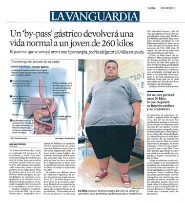 Paciente de Obesidad Mórbida operado con By-pass gástrico - La Vanguardia