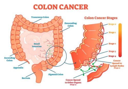 cancer-colon