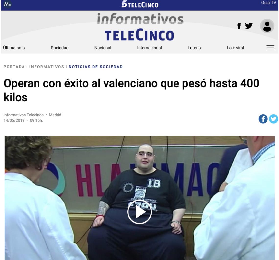 teo obesidad morbida