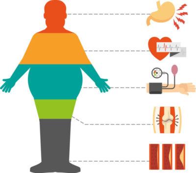 obesidad-grafico-clb